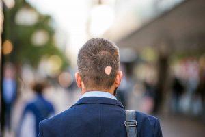 Was Tun Gegen Kreisrunden Haarausfall